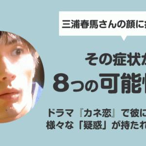 『カネ恋』三浦春馬の顔・腹部に痣(あざ)?8つの可能性を徹底検証!!