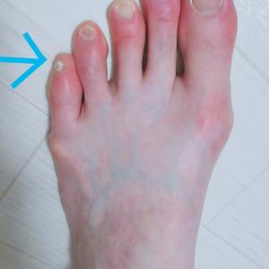小指や爪が痛い9割の女性はこれが原因