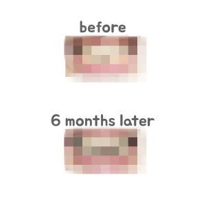 (韓国で歯列矯正・両顎手術)歯列矯正6ヶ月後の経過!