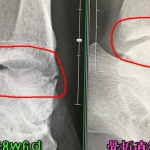 腓骨骨折8w6d。日常生活制限なし!骨折の原因は歩き方だった?
