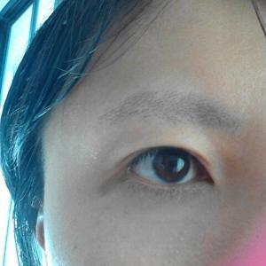 【自己診断チェック】もしかして眼瞼下垂?!まぶたの「たるみ」は本当は病気かも!