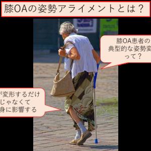内側型の膝OA患者の典型的な姿勢アライメントとは?~運動連鎖と文献の擦り合わせ~