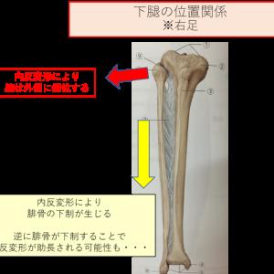 変形性膝関節症の内反ストレスに対し、腓骨を挙上させることは効果的である可能性がある