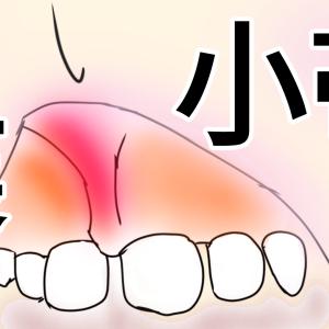 【上唇小帯】前歯の筋が長いのは切る?切らない?