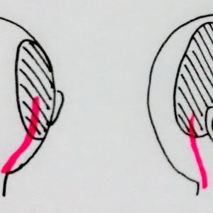 聴神経腫瘍│特に悩まされた後遺症