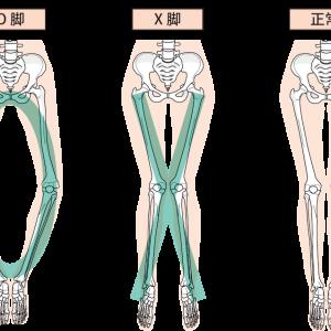 O脚はインソールを変えるだけで矯正できる。特別なことをせずに簡単に治す方法