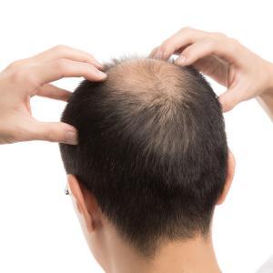 AGAの人に頭皮マッサージって効果あるの?