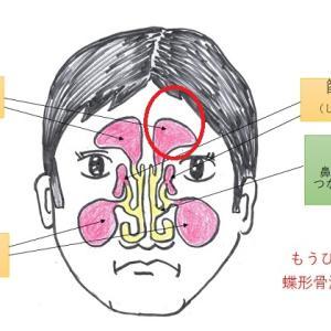 【体験 副鼻腔炎のケア】こんな所に鼻汁のツボ?