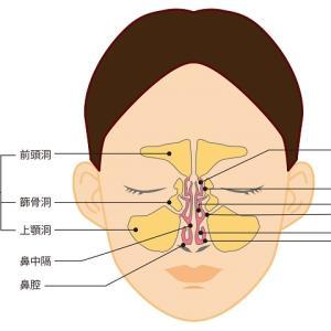 【副鼻腔炎ケア】 顔面冷却法 2カ月の結果