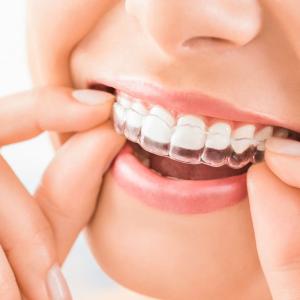 【インビザライン】歯列矯正マウスピース検討してみた。
