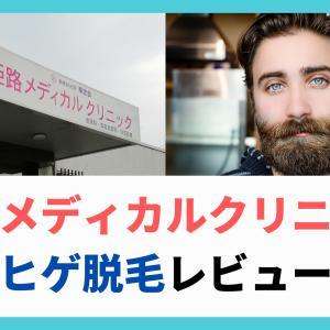 【体験記】姫路メディカルクリニックでヒゲの医療レーザー脱毛をやってみた!施術の流れ 実際の痛み おすすめポイント