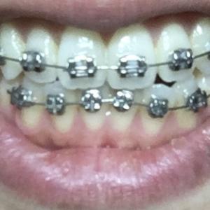 大人の歯科矯正③