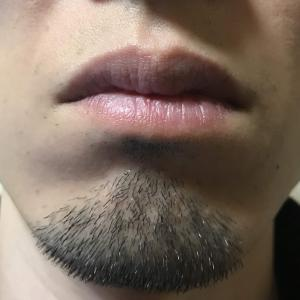 男性のあごヒゲ脱毛【毛根の位置が深すぎ】