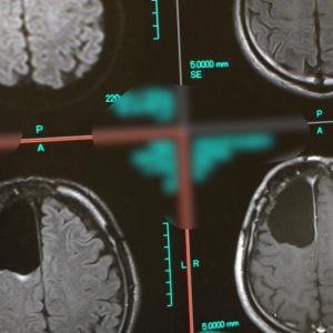 術後MRI【昔は結構こわかったMRI克服】