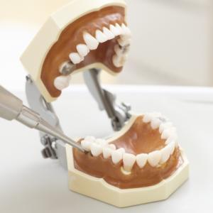 歯科選び:親知らずの抜歯は当日にしてもらえるか