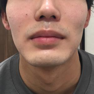 ひげ脱毛でニキビ改善!?