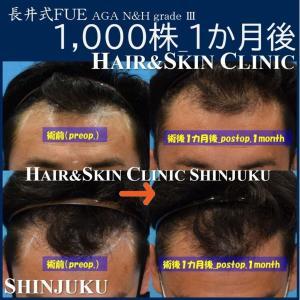 髪の悩みに対して植毛手術も行っている植毛医の高平一成です。・◇◆◇【長井式FUE植毛術...