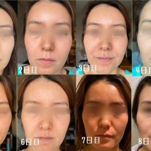 ゼオスキン1日目〜8日目まで|肌画像で変化を見比べ!◆セラピューティック