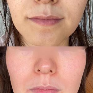 美容皮膚科で肌悩みを解決するにはいくら必要なのか?|ゼオスキン・シスペラ・ピコシュア体験