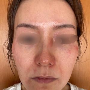 39日目赤いぶつぶつが大量発生|先生はマスクが原因というけど大丈夫?!◆セラピューティック