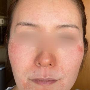 46日目ここに来て顔の皮膚がガッツリ剥けています|ゼオスキン◆セラピューティック