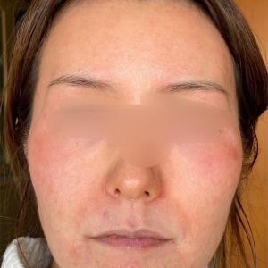 47日目右頬を比較|吹き出物跡は消えているか?|セラピューティック|ゼオスキン