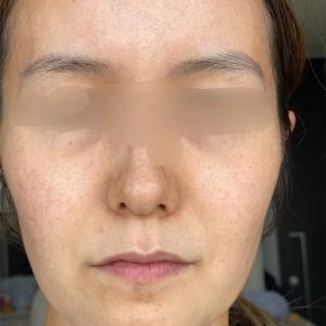 【アラフォー肌】はじめて美容皮膚科に行って気づいたこと|2020年振り返り