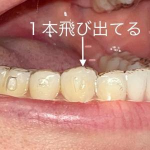 インビザライン経過報告2nd#4(前歯の圧下と1本だけ飛び出た歯。犬歯誘導について)