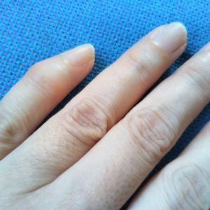 小指の第一関節、腫れてるけど