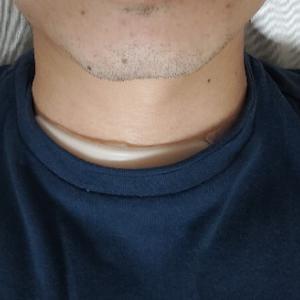 「首の腫れがひく〜4つの取組み〜」癌闘病記その26