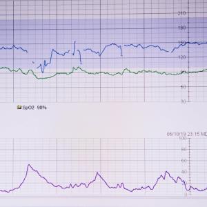 039: UK妊婦生活 予定日まであと62日 31週目CTG 胎児心拍数陣痛図(cardiotocography)初体験