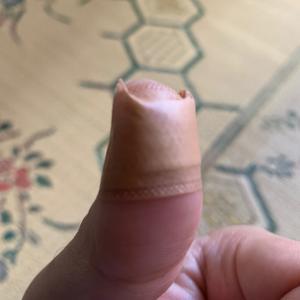 ついさっき、指をカッターの刃で切りました↓