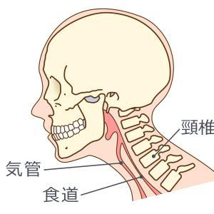 オール巨人 頚椎ヘルニア