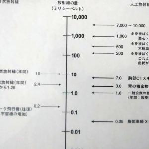 """病院でのX線検査の """"放射線被爆"""" 気になりませんか?"""