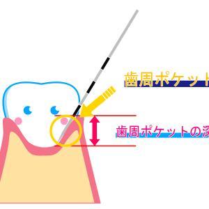 歯周病が進んでいた(>_<)