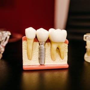 【健康】定期歯科検診を受けるメリット5選