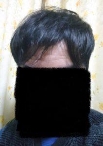 AGA治療経過写真【治療から1年4ヵ月経過】