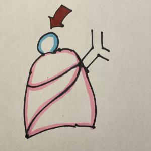 気胸 手術 合併症