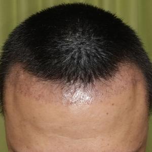 術後 037日目 髪を切ってみる