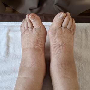 サナモア光線 私のおばあちゃん また来てくれました【足のむくみ】