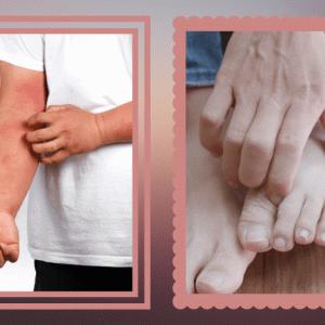 アトピー性皮膚炎にイトラコナゾール?ナシでもないけど、モヤモヤ…