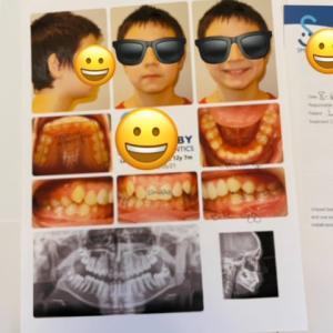 長男(12歳)矯正歯科の初診カウンセリング