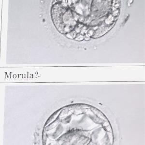 夫の精子を顕微鏡で見た日