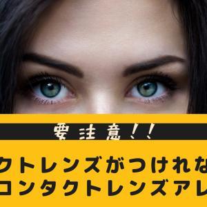 【体験談】コンタクトレンズがつけれない!コンタクトレンズアレルギーの恐怖とは?