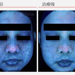 男性のシミ取りも大人気!肌質でこんなに若返ります♪メンズ基礎化粧品(化粧水)にもおすすめです!
