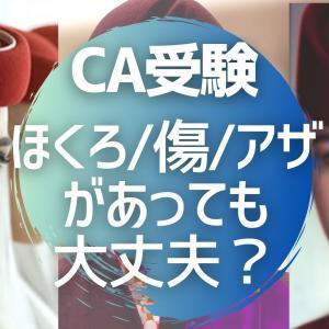 CA受験でほくろや傷・アザ・ニキビがあっても大丈夫?【カタール・エミレーツ航空採用キャビンアテンダント】