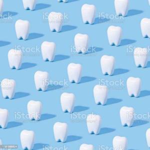 こだわっている審美歯科について