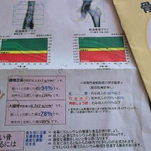 骨密度測定の検査を受けました♪