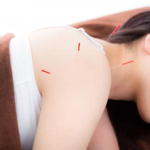 自分自身で行う、痛みの緩和・身体バランスを整える鍼治療について