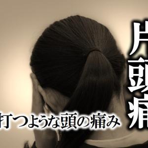 【片頭痛】「ズキンズキン」と脈を打つような頭痛にお悩みの方へ